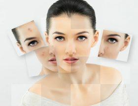 ये 8 उपाय चुटकियों में देंगे सुन्दर और बेदाग त्वचा